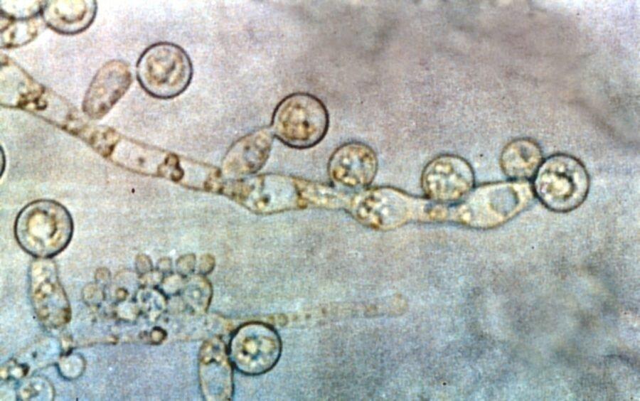 نکته بهداشتی، درمان عفونت قارچی زنان
